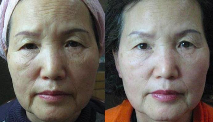 Ultraformer huidverstrakking vrouw gelaat