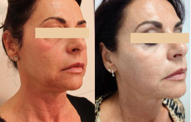 resultaat Ultraformer hele gezicht vrouw zijkant