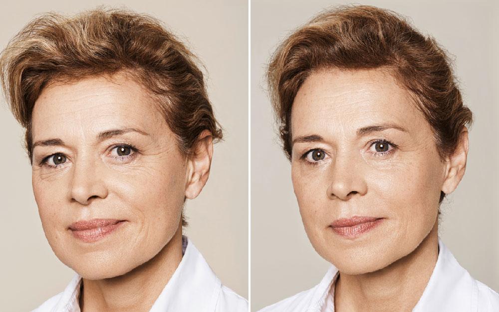 Fillers met hyaluronzuur - hele gezicht - Willeke Kamphof Haarlem
