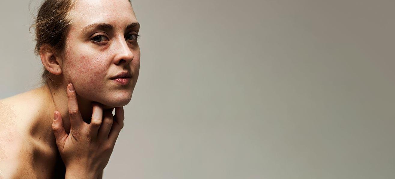 Ter lering ende vermaeck: Acne