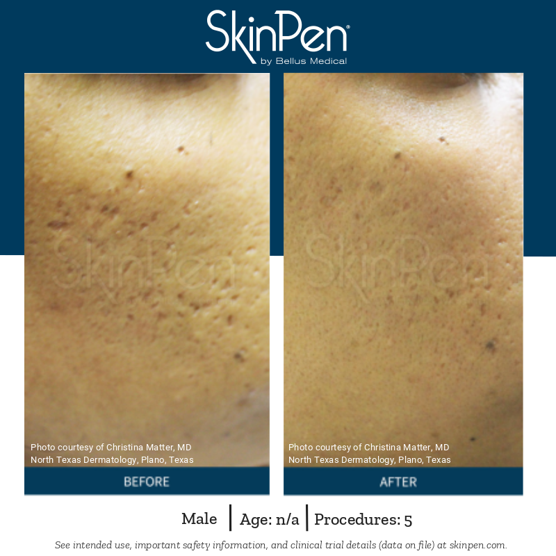 SkinPen - Before and After