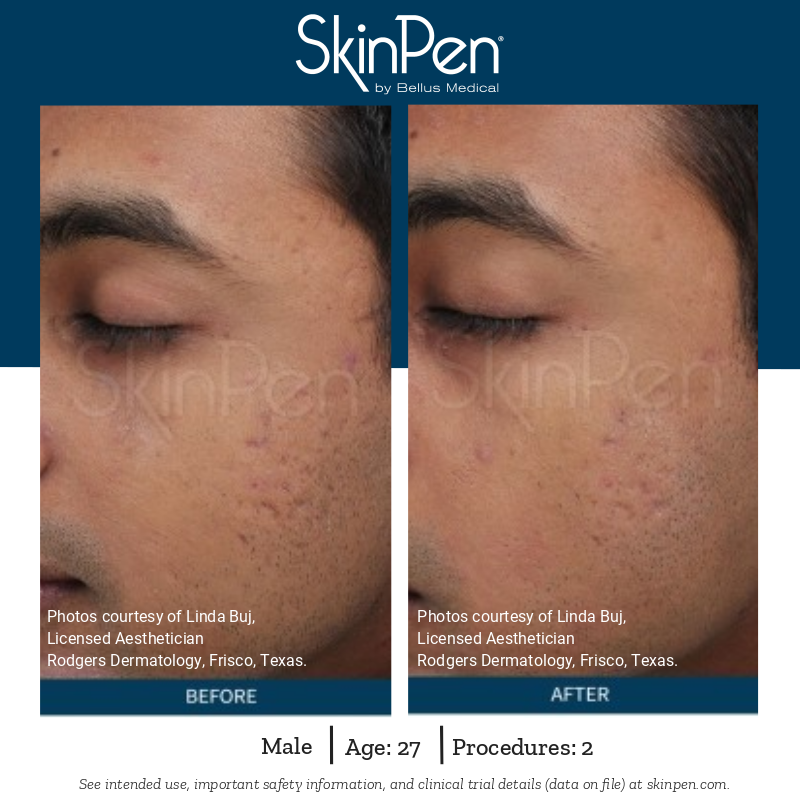 SkinPen - Before and After2